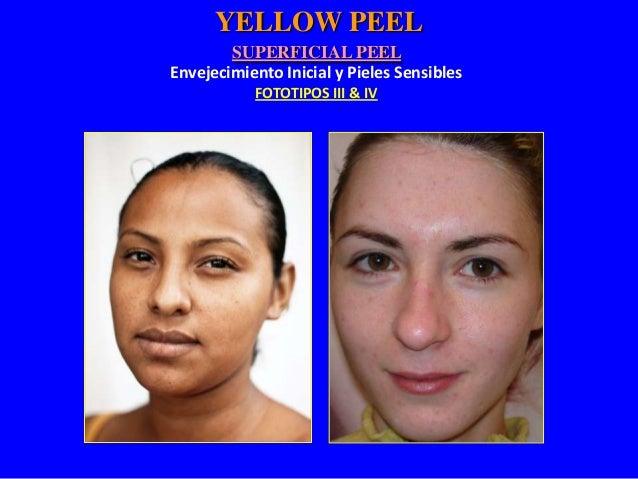 Tratamiento Profesional Pieles Sensibles Fototipos III & IV Arrugas Superficiales  Envejecimiento Inicial Yellow Peel 1-3 ...