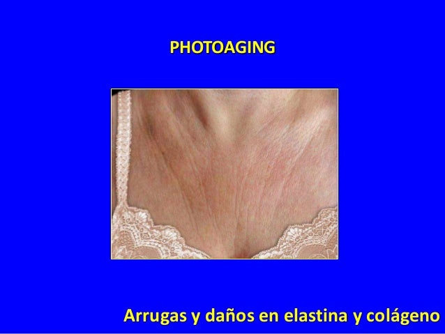 PHOTOAGING  Hiperpigmentación