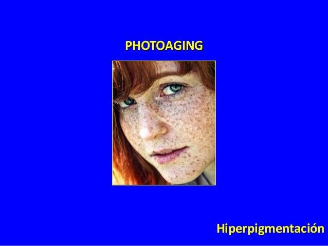 PHOTOAGING  Pérdida de color y plenitud en los labios