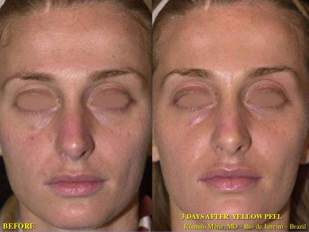 BEFORE  03-06-07 BEFORE  15-06-07 12 DAYS AFTER YELLOW PEEL  12 DAYS AFTER YELLOW PEEL Rômulo Mêne, MD - Rio de Janeiro - ...