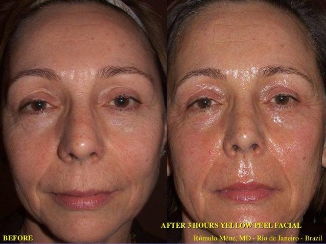 """Protocolo """"Peeling"""" Profundo • • •  •  Fotoenvejecimiento MEDIANO Y SEVERO (Fototipo I & II ) Aplique Yellow Peel al rostr..."""