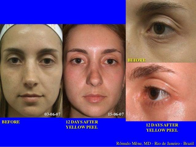 Tratamiento Profesional Fototipos I & II Envejecimiento  Arrugas Superficiales  Inicial Yellow Peel 1-3 Tratamientos  1-3 ...