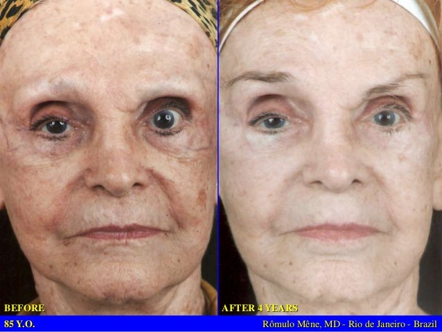 42 Y.O – 20 YEARS OF LOW PROTEIN DIET  BEFORE  1 WEEK AFTER (YELLOW PEEL AND PROTEIN DIET) Rômulo Mêne, MD - Rio de Janeir...