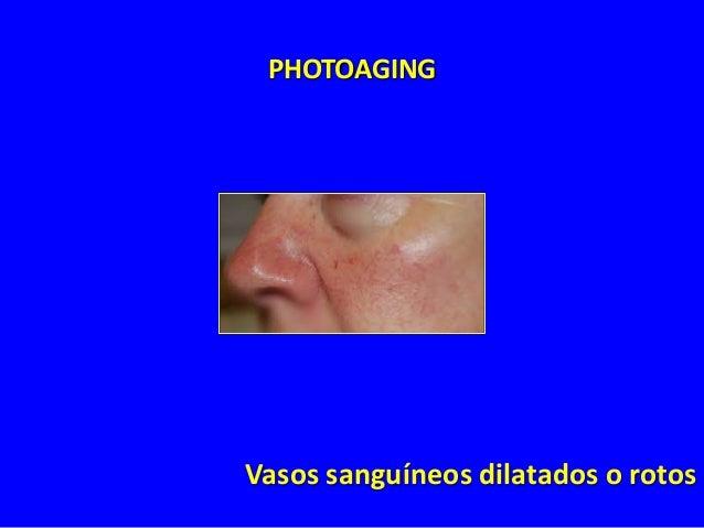 Face Lifting  6 años después de lifting facial  Rômulo Mêne, MD - Rio de Janeiro - Brazil