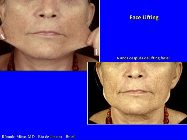 Tratamiento Tópico de Envejecimiento Facial