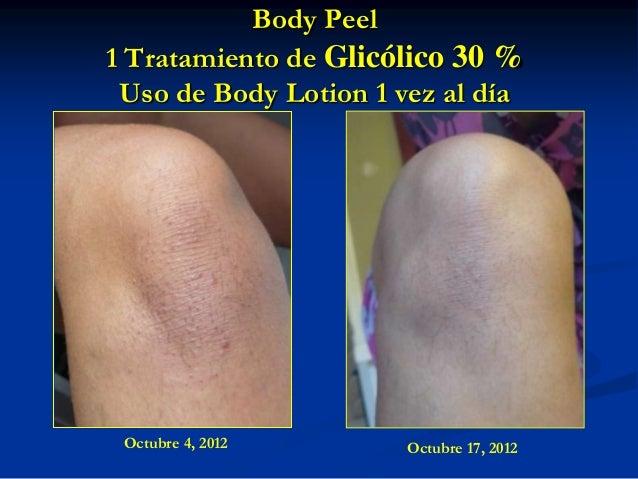 Body Peel 1 Tratamiento de Glicólico 30 % Uso de Body Lotion 1 vez al día  Octubre 4, 2012  Octubre 17, 2012