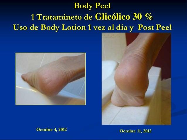Body Peel 1 Tratamineto de Glicólico 30 % Uso de Body Lotion 1 vez al dia y Post Peel  Octubre 4, 2012  Octubre 11, 2012
