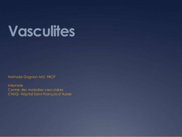 VasculitesNathalie Gagnon MD, FRCPInternisteCentre des maladies vasculairesCHUQ- Hôpital Saint-François d'Assise