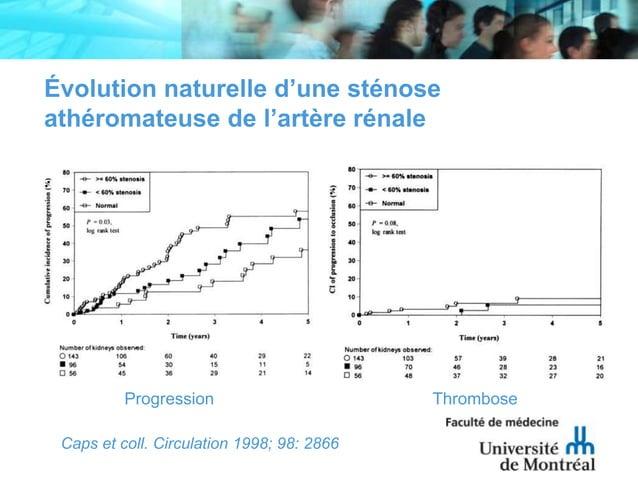 Évolution naturelle d'une sténoseathéromateuse de l'artère rénaleCaps et coll. Circulation 1998; 98: 2866Progression Throm...