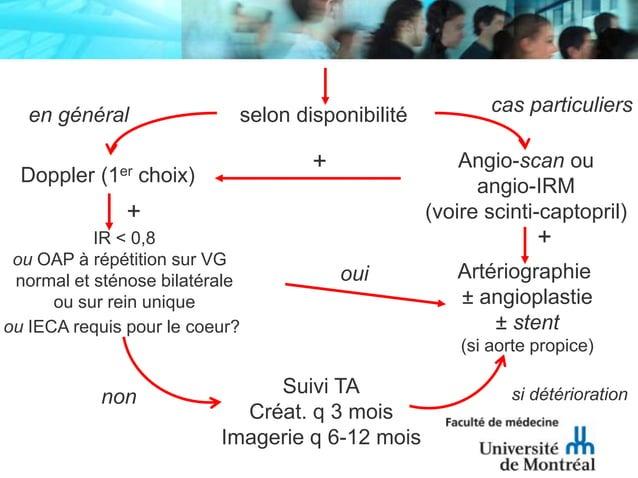selon disponibilitéDoppler (1er choix)Angio-scan ouangio-IRM(voire scinti-captopril)IR < 0,8ou OAP à répétition sur VGnorm...