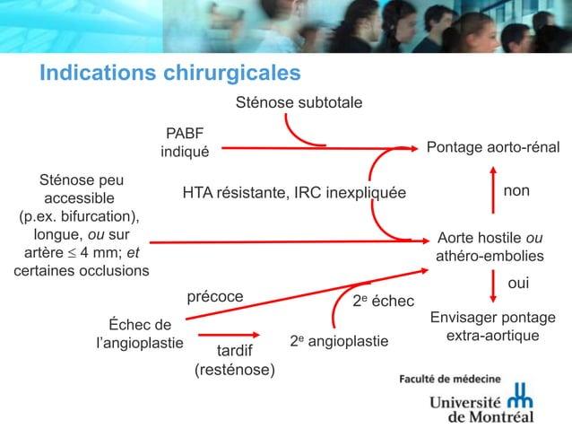 PABFindiquéAorte hostile ouathéro-embolies2e angioplastietardif(resténose)2e échecnonEnvisager pontageextra-aortiqueouiPon...