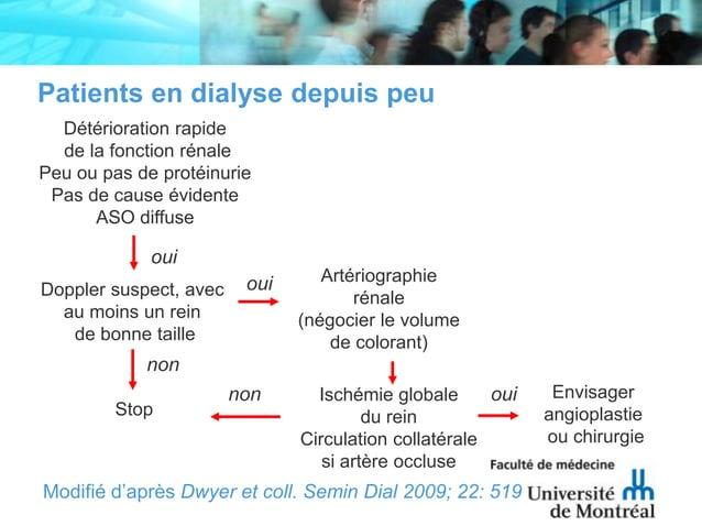 Patients en dialyse depuis peuDétérioration rapidede la fonction rénalePeu ou pas de protéinuriePas de cause évidenteASO d...