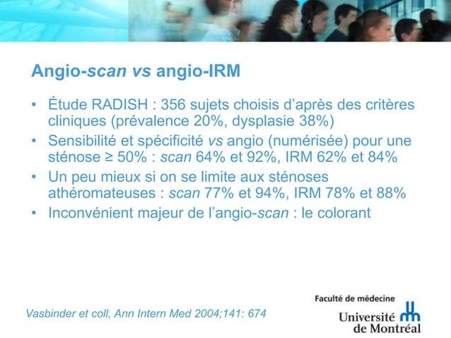 Angio-scan vs angio-IRM• Étude RADISH : 356 sujets choisis d'après des critèrescliniques (prévalence 20%, dysplasie 38%)• ...