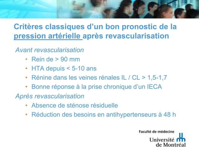 Critères classiques d'un bon pronostic de lapression artérielle après revascularisationAvant revascularisation• Rein de > ...