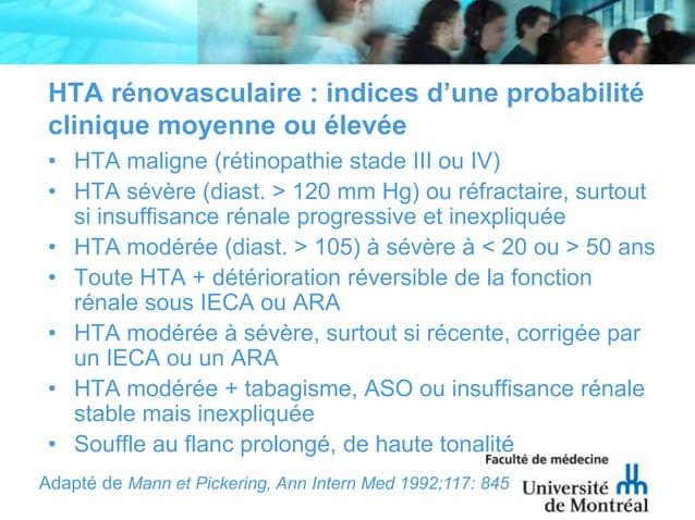 HTA rénovasculaire : indices d'une probabilitéclinique moyenne ou élevée• HTA maligne (rétinopathie stade III ou IV)• HTA ...