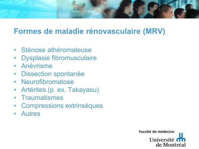 Formes de maladie rénovasculaire (MRV)• Sténose athéromateuse• Dysplasie fibromusculaire• Anévrisme• Dissection spontanée•...
