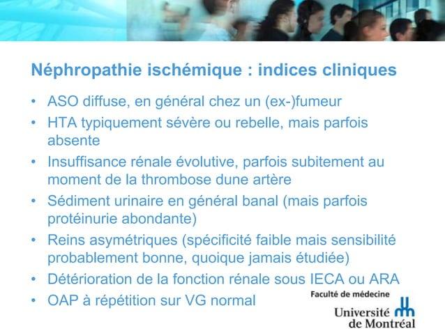 Néphropathie ischémique : indices cliniques• ASO diffuse, en général chez un (ex-)fumeur• HTA typiquement sévère ou rebell...