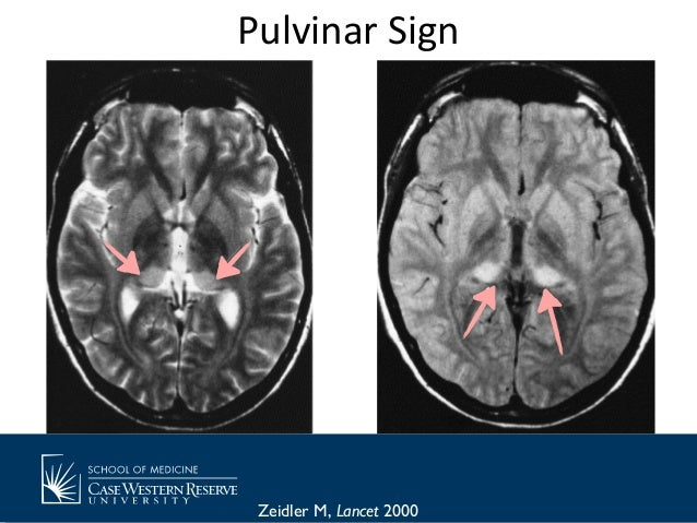 Mad Cow Disease Brain Scan
