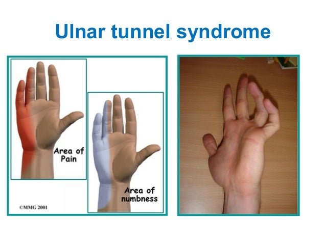 Ape Hand Deformity Median Nerve 2775 Movieweb