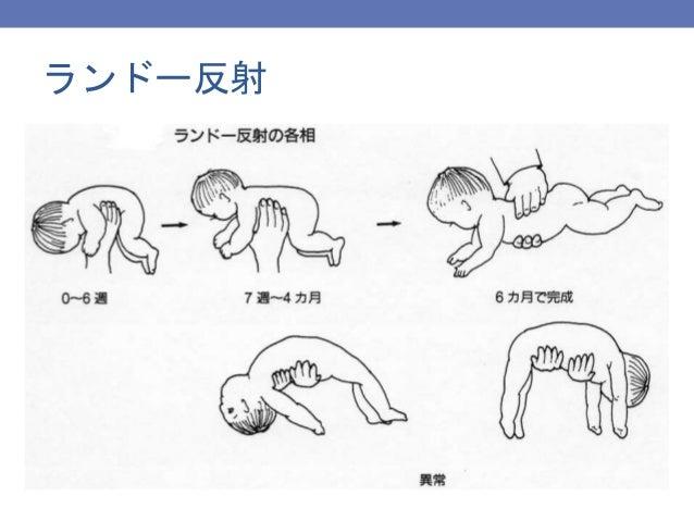 新生児・乳児の診方