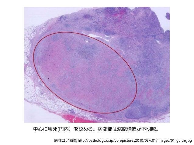 病理コア画像 http://pathology.or.jp/corepictures2010/02/c01/images/01_guide.jpg 中心に壊死(円内)を認める。病変部は濾胞構造が不明瞭。