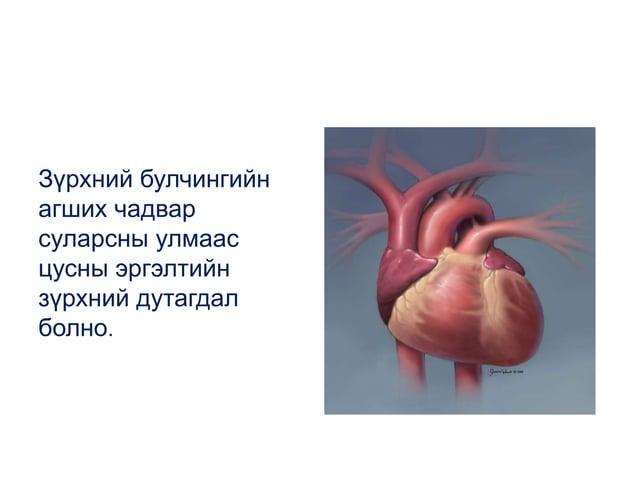 Зүрхний булчингийн агших чадвар суларсны улмаас цусны эргэлтийн зүрхний дутагдал болно.