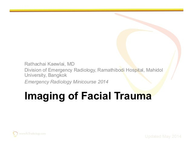 www.RiTradiology.com	  www.RiTradiology.com	  Imaging of Facial Trauma Rathachai Kaewlai, MD Division of Emergency Radiolo...