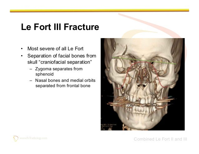 Congratulate, your fractures of the facial bones there