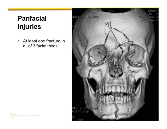 imaging of facial trauma