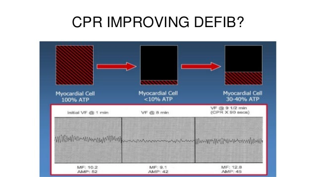a discussion on the importance of cpr Although advances in emergency cardiac care continue to improve the chances  of surviving cardiac arrest, cardiac.