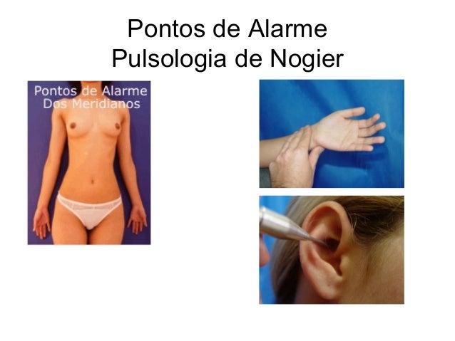 Pontos de Alarme Pulsologia de Nogier