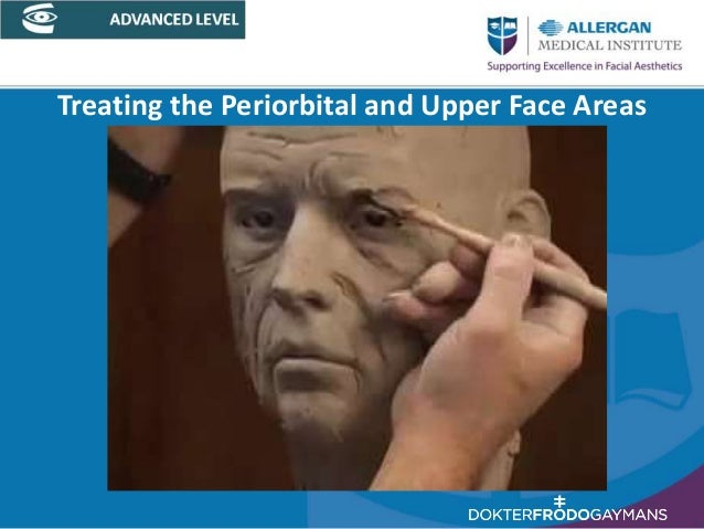 Treating the Periorbital and Upper Face Areas