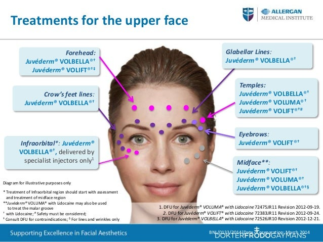 Training For Periorbital And Upper Face Treatment With Botox And Juved...