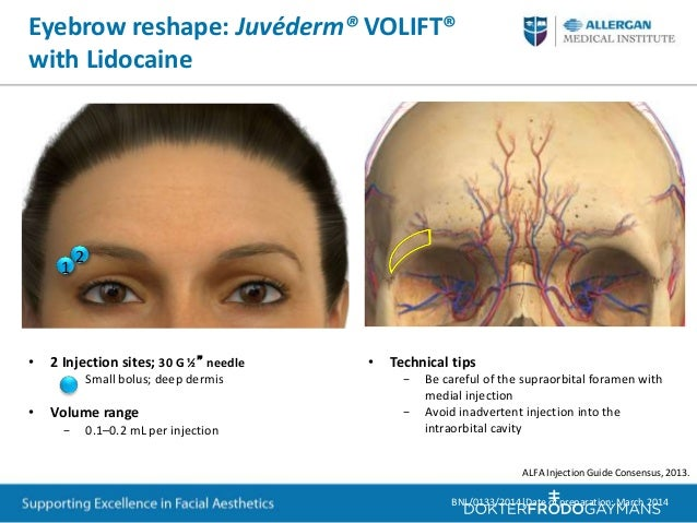 Training for periorbital and upper face treatment with botox