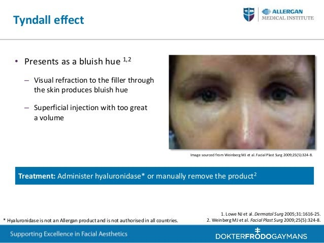 Facial anatomy allergan