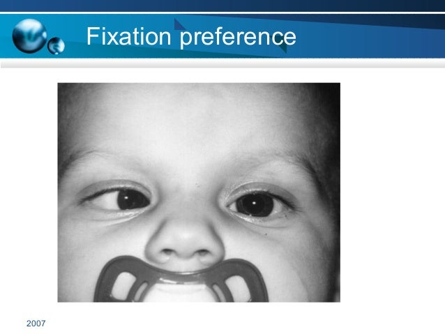 2007 Fixation preference