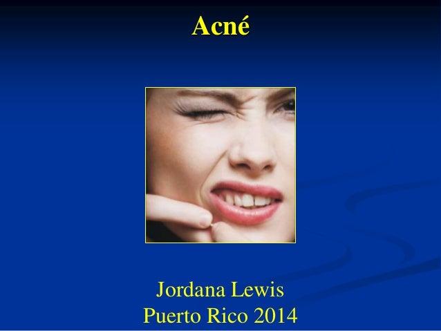 Acné  Jordana Lewis  Puerto Rico 2014