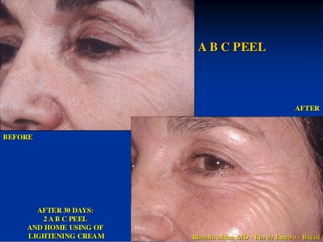 Protocolo Mascarilla de  Ácido Glicolico 25%  1. Documentación Fotográfica  2. Diagnóstico  3. Check Up Peel – Jabón de Ác...
