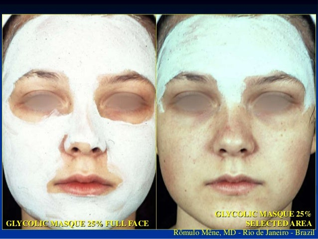 3 MONTHS AFTER TREATMENT WITH  GLYCÓLIC MASQUE 25%  Rômulo Mêne, MD - Rio de Janeiro - Brasil  BEFORE  POST IMMEDIATE  GLY...
