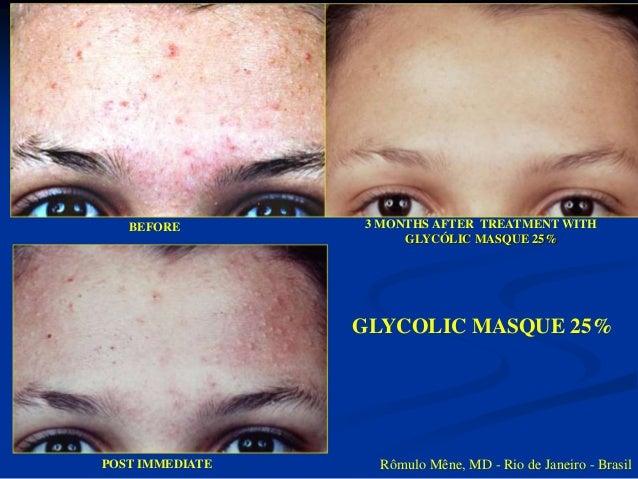 GLYCOLIC MASQUE 25%  ACTIVE ACNE & OILY SKIN SELECTED AREA  Rômulo Mêne, MD - Rio de Janeiro - Brazil