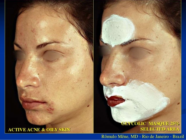 3 MONTHS AFTER TREATMENT WITH  GLYCOLIC MASQUE 25%  ACTIVE ACNE & OILY SKIN  Rômulo Mêne, MD - Rio de Janeiro - Brazil