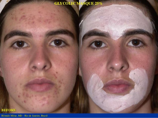BEFORE GLYCOLIC MASQUE 25%  SELECTED AREA  AFTER 120 DAYS  BEFORE GLYCOLIC MASQUE 25%  SELECTED AREA  AFTER 120 DAYS  Rômu...