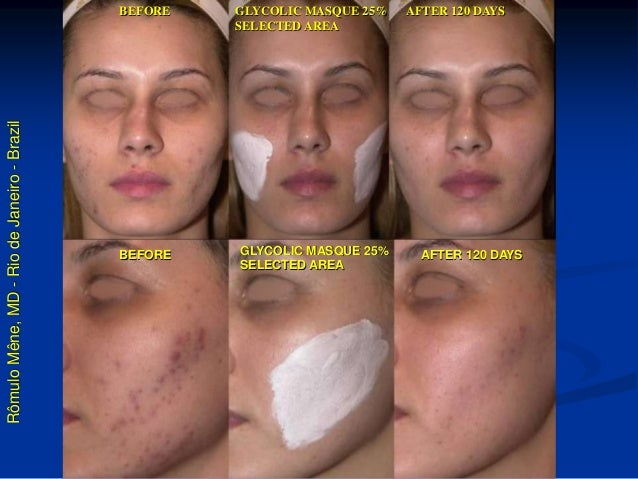 Rômulo Mêne, MD - Rio de Janeiro - Brazil  BEFORE  GLYCOLIC MASQUE 25%  SELECTED AREA  AFTER 120 DAYS BEFORE AFTER 120 DAY...