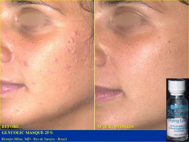 GLYCOLIC MASQUE 25%  BEFORE AFTER 3 MONTHS  Rômulo Mêne, MD - Rio de Janeiro - Brazil