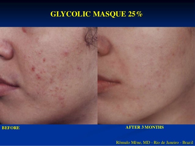 4 MONTHS AFTER  TREATMENT WITH  GLYCOLIC MASQUE 25%  BEFORE  Rômulo Mêne, MD  Rio de Janeiro - Brazil