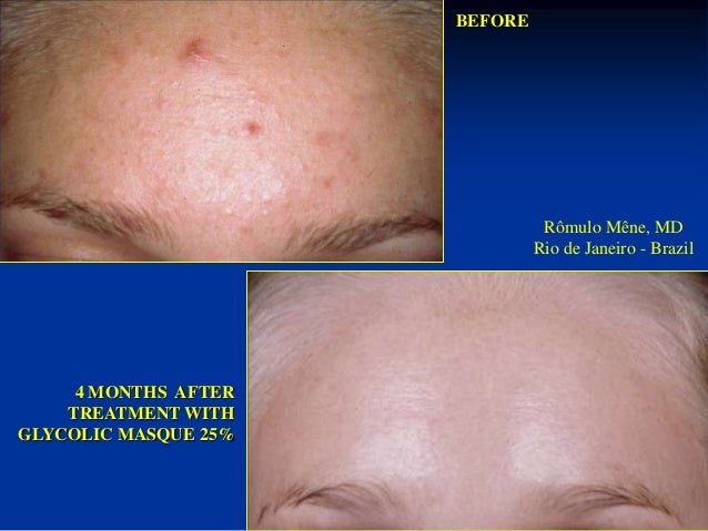 60 DAYS AFTER  TREATMENT WITH  GLYCOLIC MASQUE 25%  BEFORE  Rômulo Mêne, MD  Rio de Janeiro - Brazil