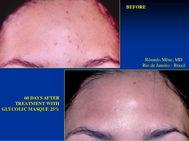 Rômulo Mêne, MD  Rio de Janeiro - Brazil BEFORE  GLYCOLIC MASQUE  25%  BEFORE AFTER 4 YEARS  AFTER 4 YEARS