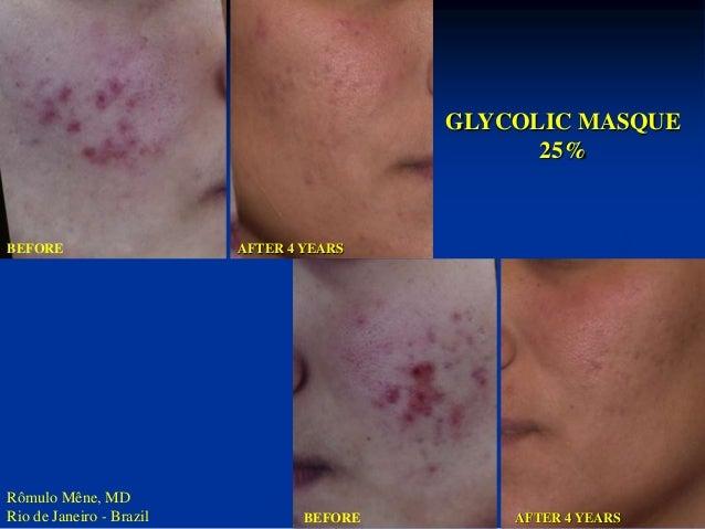 BEFORE  AFTER 3 MONTHS  (Courtesy : Dr. ARMANDO PARODI GENOVA-ITALY)  GLYCOLIC MASQUE  25%