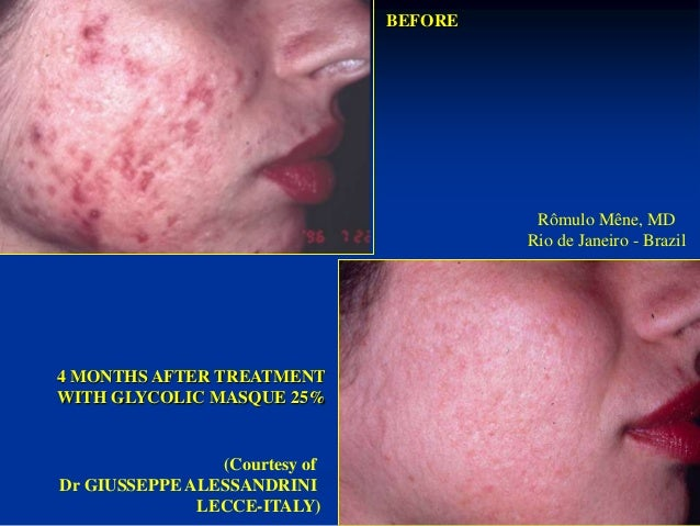 3 MONTHS AFTER  TREATMENT WITH  GLYCOLIC MASQUE 25%  BEFORE  Rômulo Mêne, MD  Rio de Janeiro - Brazil