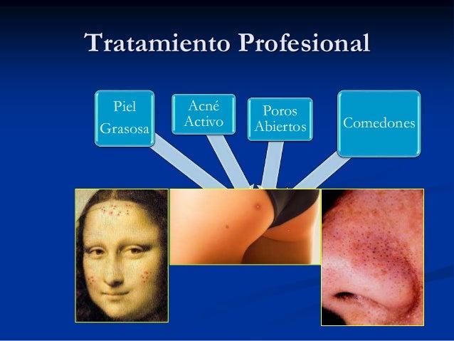 Tratamiento Professional  ABC Peel  o  30% Glycolic Peel  8-12 Tratamientos  4-6 meses  Piele  Grasosa  Acne  Activa  Poro...